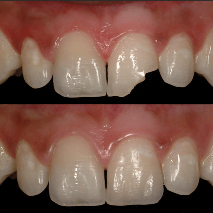 Repairing Chipped Teeth